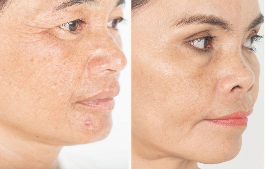 Przebarwienia na skórze - rodzaje i ich powstawanie