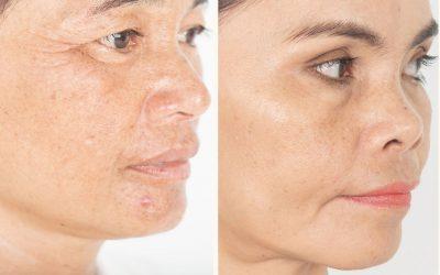 Przebarwienia na skórze – rodzaje i ich powstawanie
